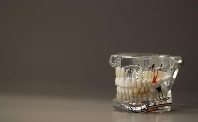 Zła sposób żywienia się to większe niedostatki w ustach natomiast także ich brak